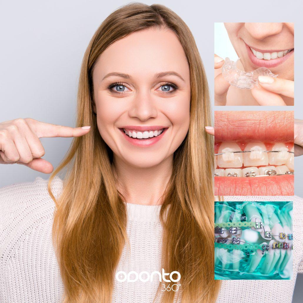 Ortodontia - Clínica Odonto 360